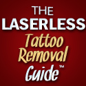 The Laserless Tattoo Removal Guide Review